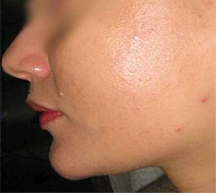 Uklanjanje akni posle