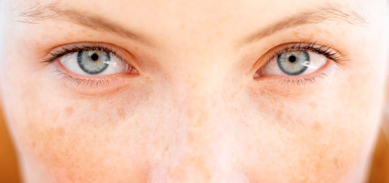 Depigmentacija