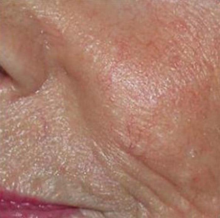 Posle depigmentacije