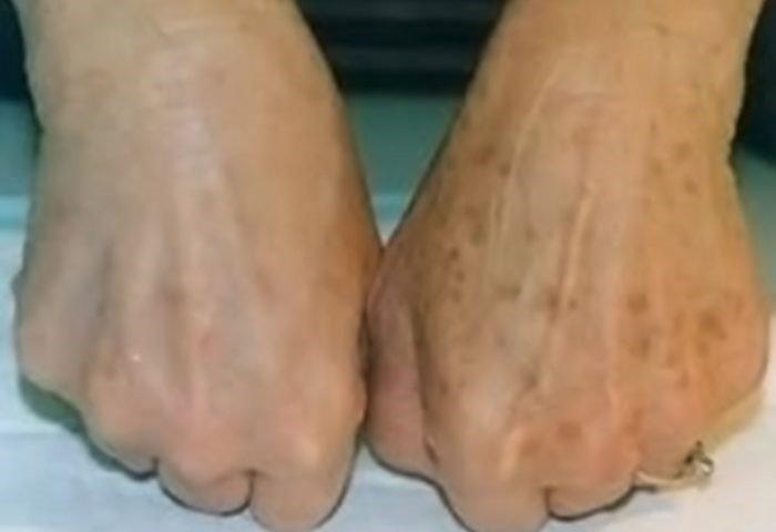 Pre i posle depigmentacije