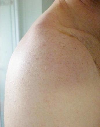 Posle trajne epilacije 808 Diod laserom
