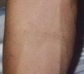 Posle uklanjanja tetovaža