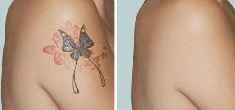 Uklanjanje tetovaža