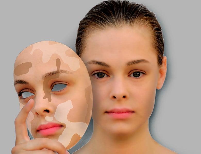 Depigmentacija laserom