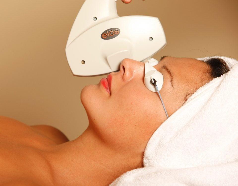 Uklanjanje akni ELOS-om