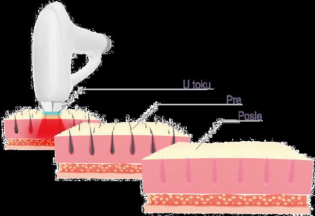 Trajna epilacija 808 Diod laserom