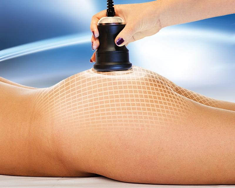 Ultrazvučna kavitacija