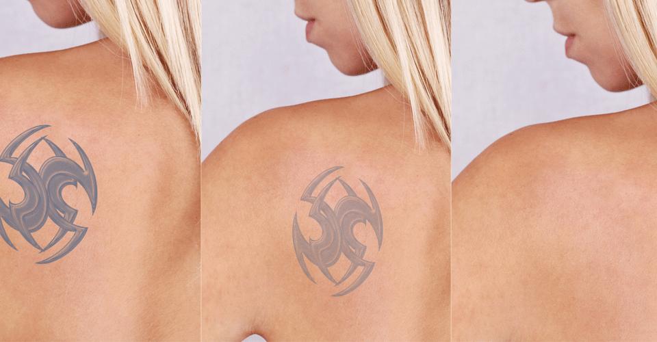 Uklanjanje tetovaža - Vita Elos