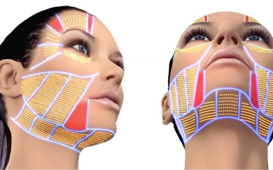 Ultrazvučni SMAS lifting lica