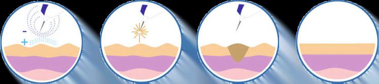 Plasma pen ilustracija